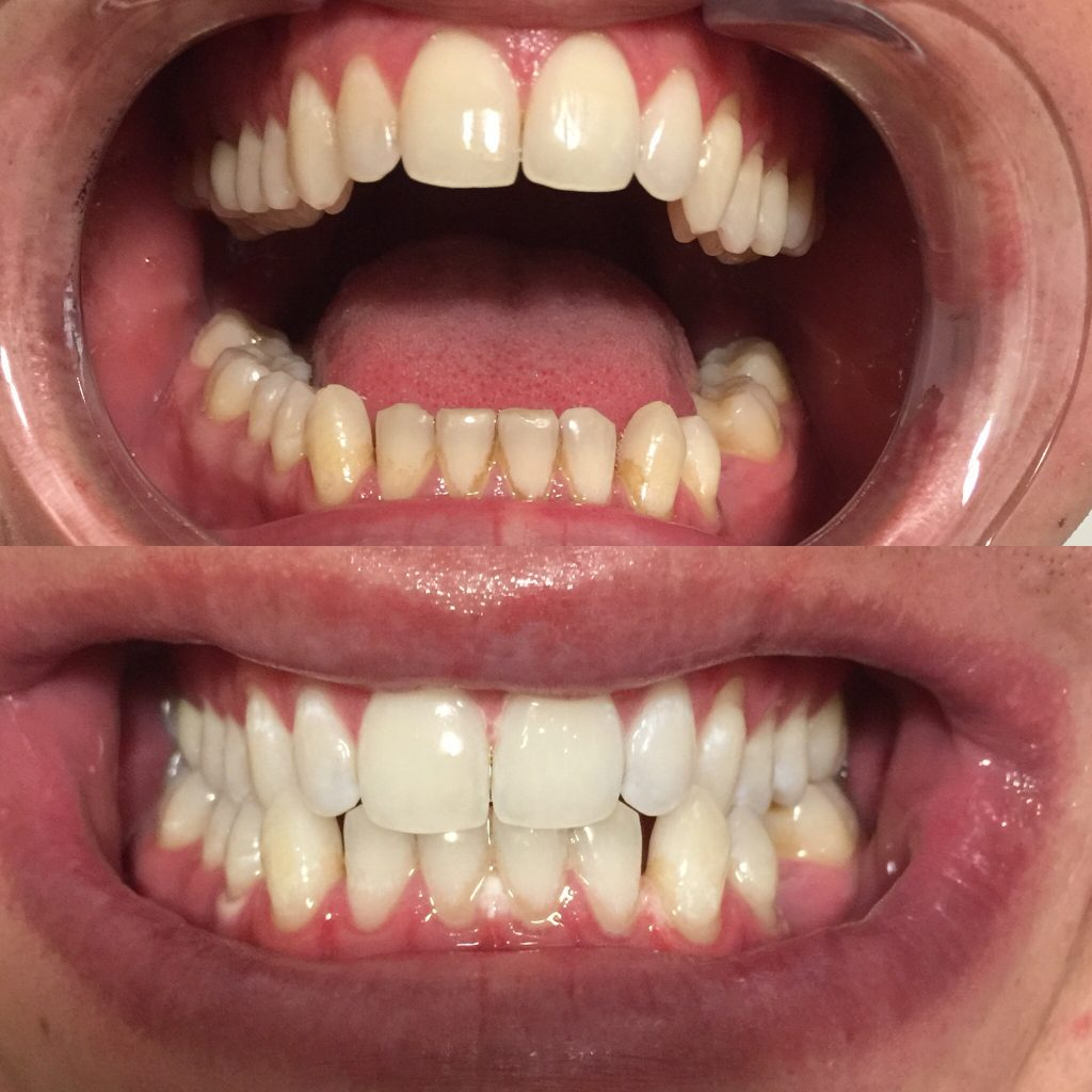 Teeth Whitening Willow Grove