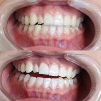 Self applied Professional Teeth Whitening Willow Grove Pa